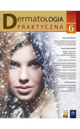 Dermatologia Praktyczna 6/2015 - Andrzej Kaszuba - Ebook