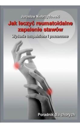 Jak leczyć reumatoidalne zapalenie stawów II - Jarosław Niebrzydowski - Ebook - 978-83-7900-238-2
